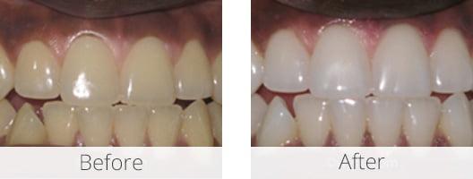 Grey-Teeth